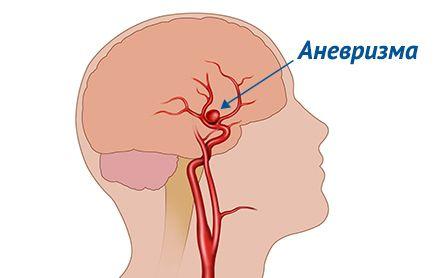 Эндоваскулярное лечение аневризм головного мозга