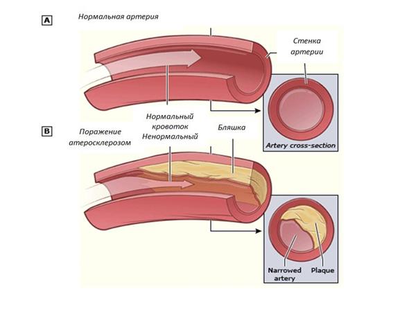 Атеросклероз хирургия в москве thumbnail