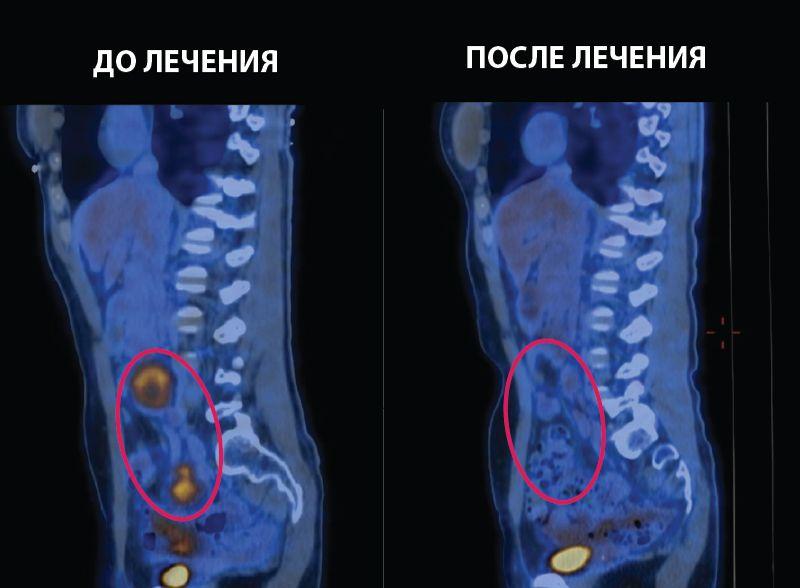 Лечение рака шейки матки с метастазами