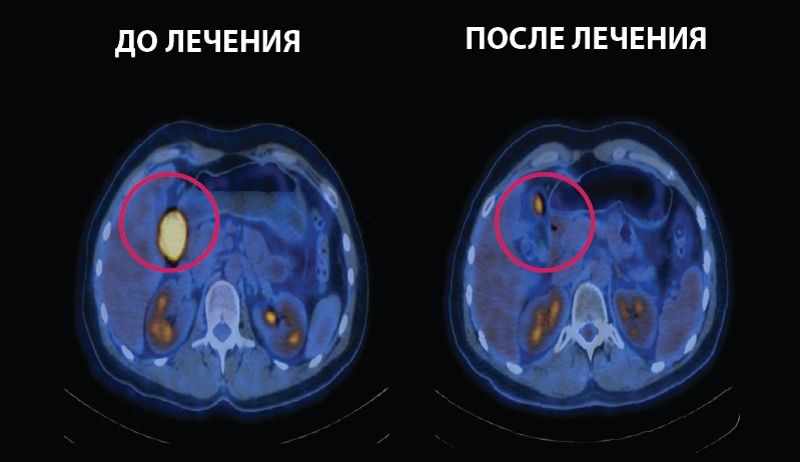 Лучевая терапия при лимфоме