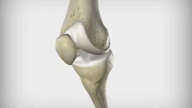 Эндопротезирование коленного суставов в клинике ЕМС