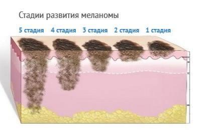 Где пройти диагностику меланомы thumbnail