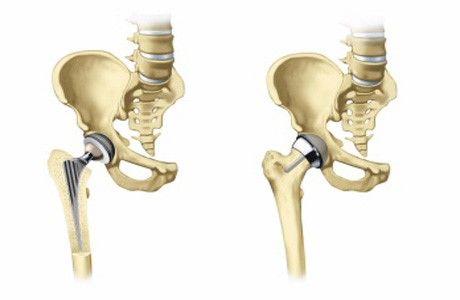 После 60 тотальное эндопротезирование тазобедренного сустава thumbnail