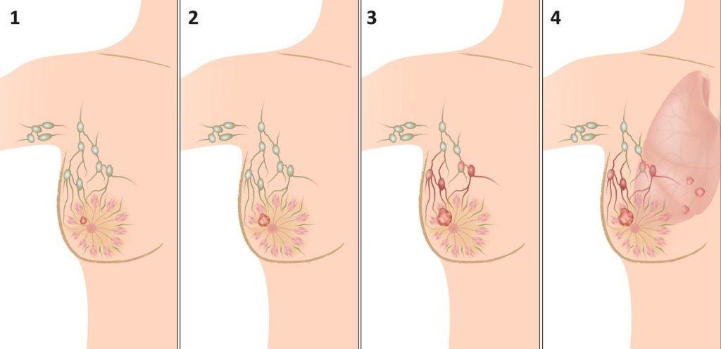 лечение рака груди 4 стадии