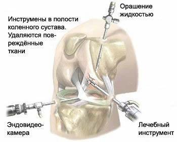 Артроскопия - схема